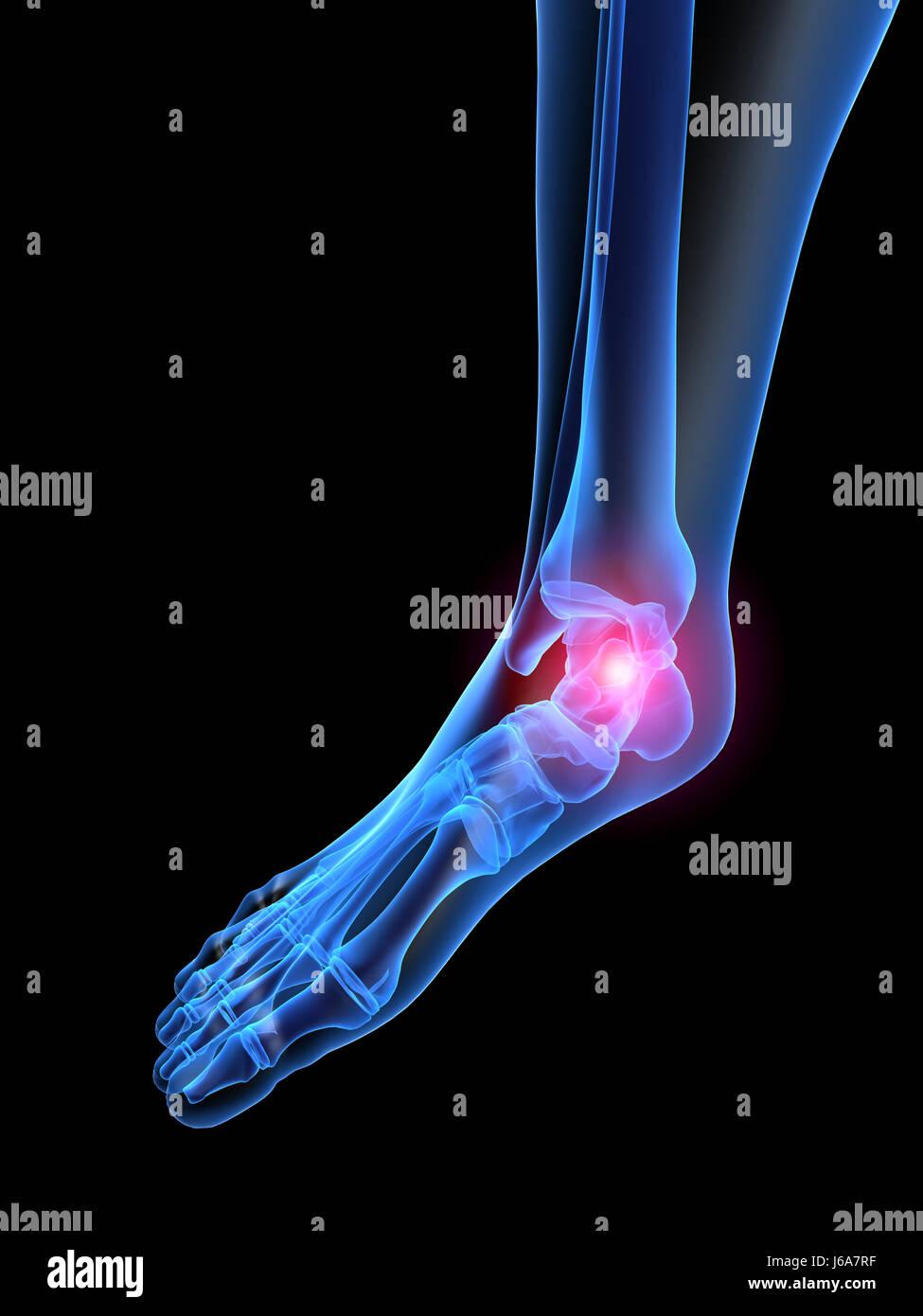 menschliche Mensch Schmerzen Fußgesundheit Skelett Anatomie ...