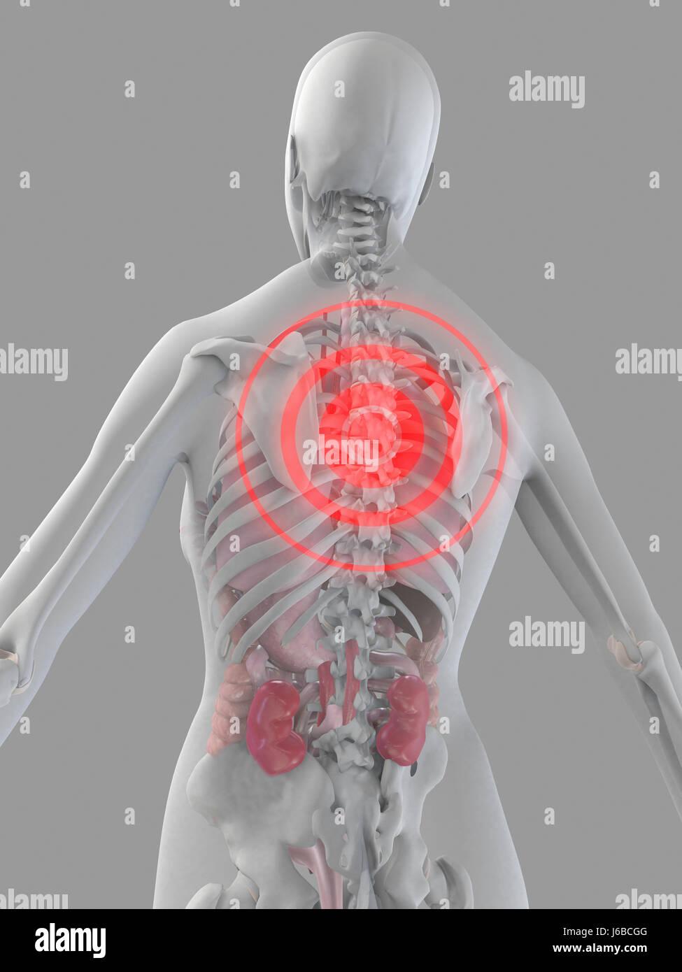 Großartig Anatomie Des Unteren Rückens Bilder - Physiologie Von ...