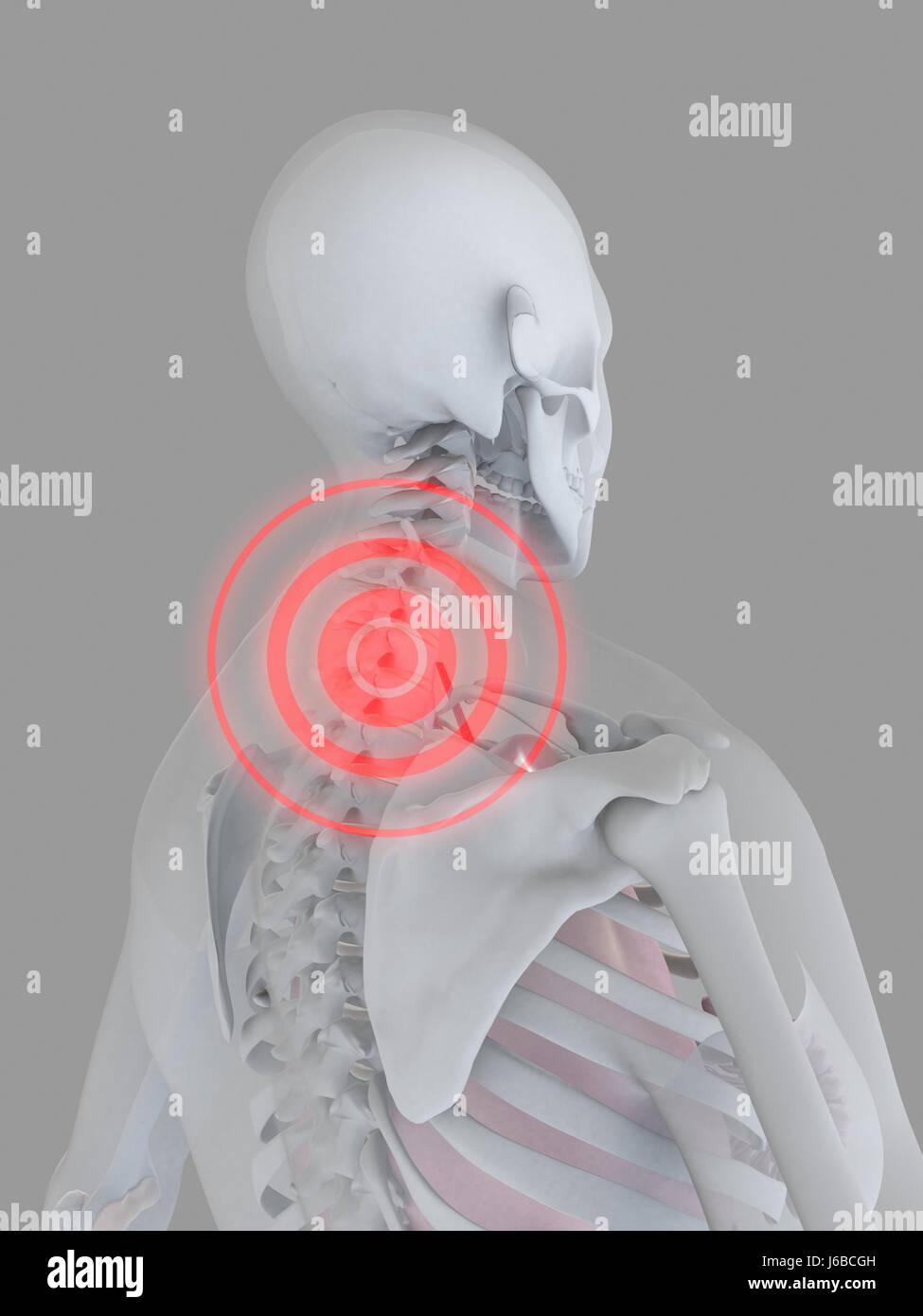 medizinisch medizinischer weibliche menschliche Mensch Skelett ...