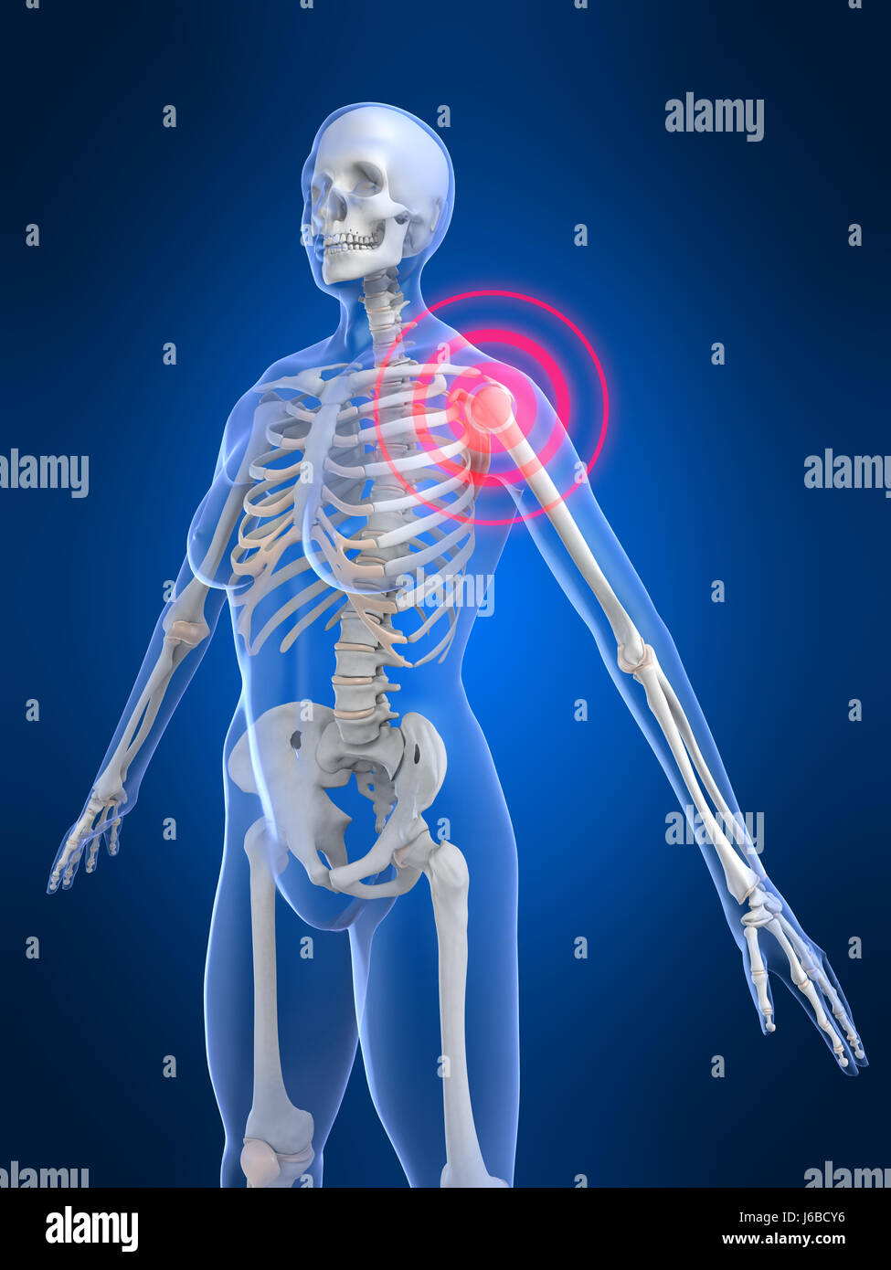 Nett Rücken Und Schulter Anatomie Fotos - Menschliche Anatomie ...
