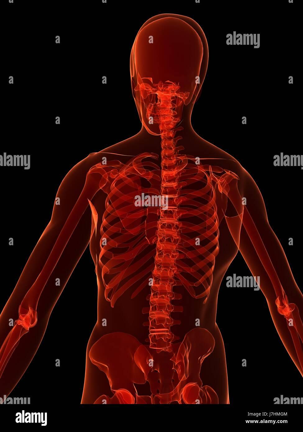Gesundheit Mensch Mensch Skelett Anatomie Wirbelsäule Osteoporose ...