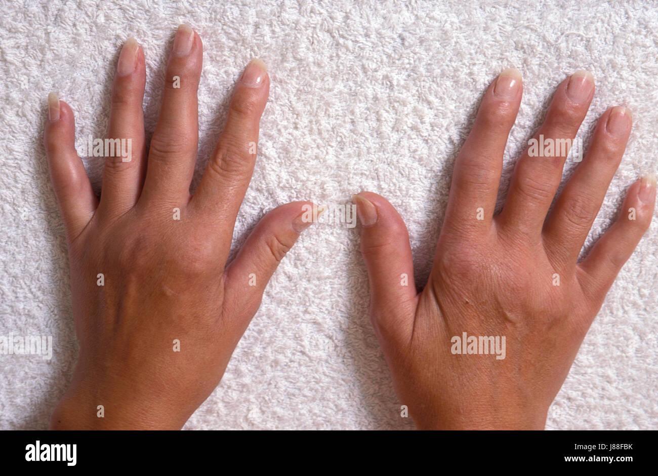 Erwachsene weibliche Hände mit rheumatoider arthritis Stockbild