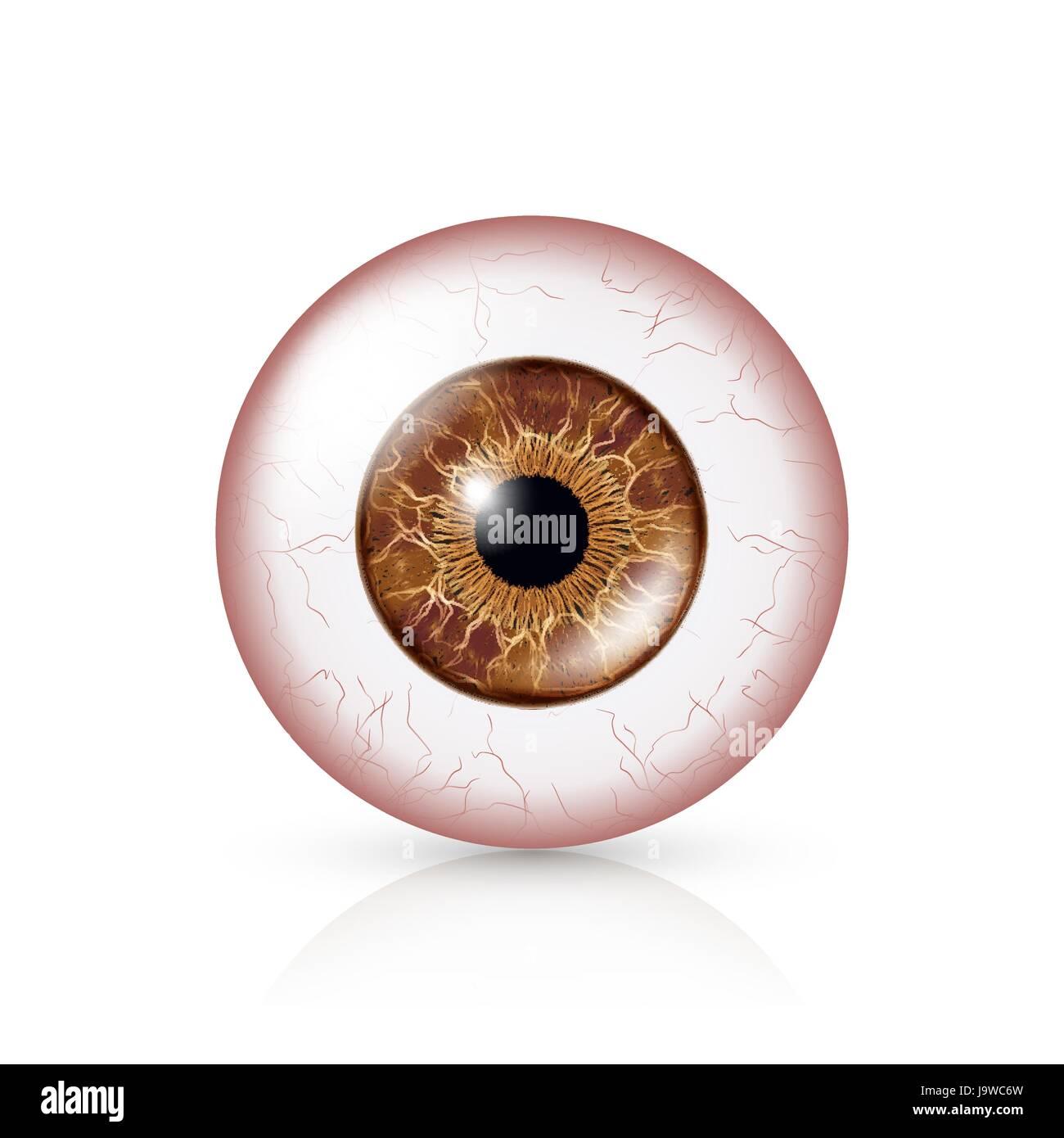 Bindehautentzündung. Rote Augen. Menschlichen Augapfel mit ...