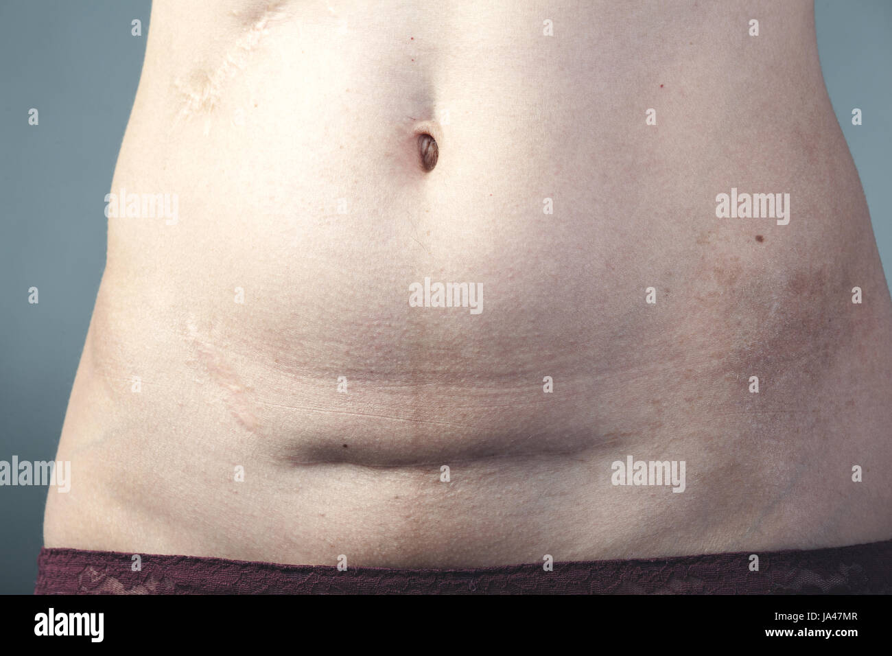 Bauchschnitt Narbe
