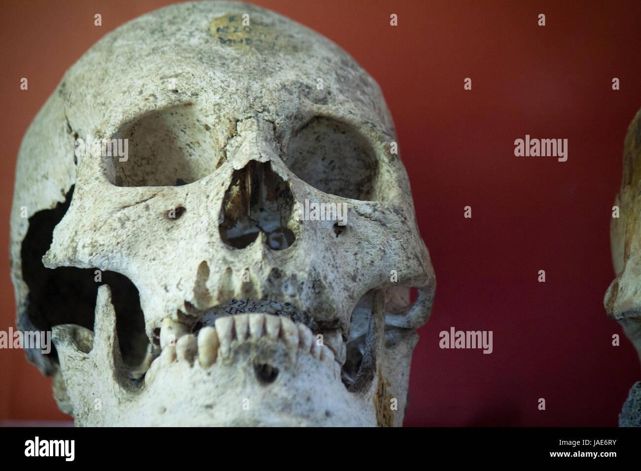 Ausgezeichnet Menschliche Anatomie Reale Abbildungen Ideen ...