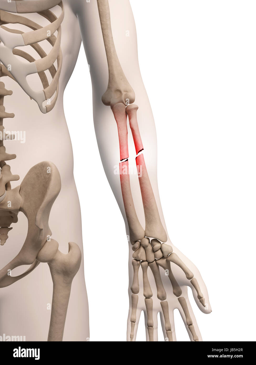 Lower Arm Bone Stockfotos & Lower Arm Bone Bilder - Alamy