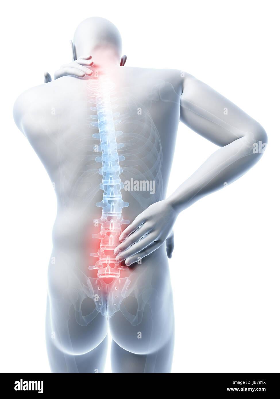 Erfreut Rücken Und Nacken Anatomie Fotos - Menschliche Anatomie ...