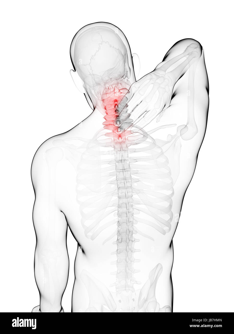 Großzügig Nacken Und Rücken Anatomie Zeitgenössisch - Anatomie Ideen ...