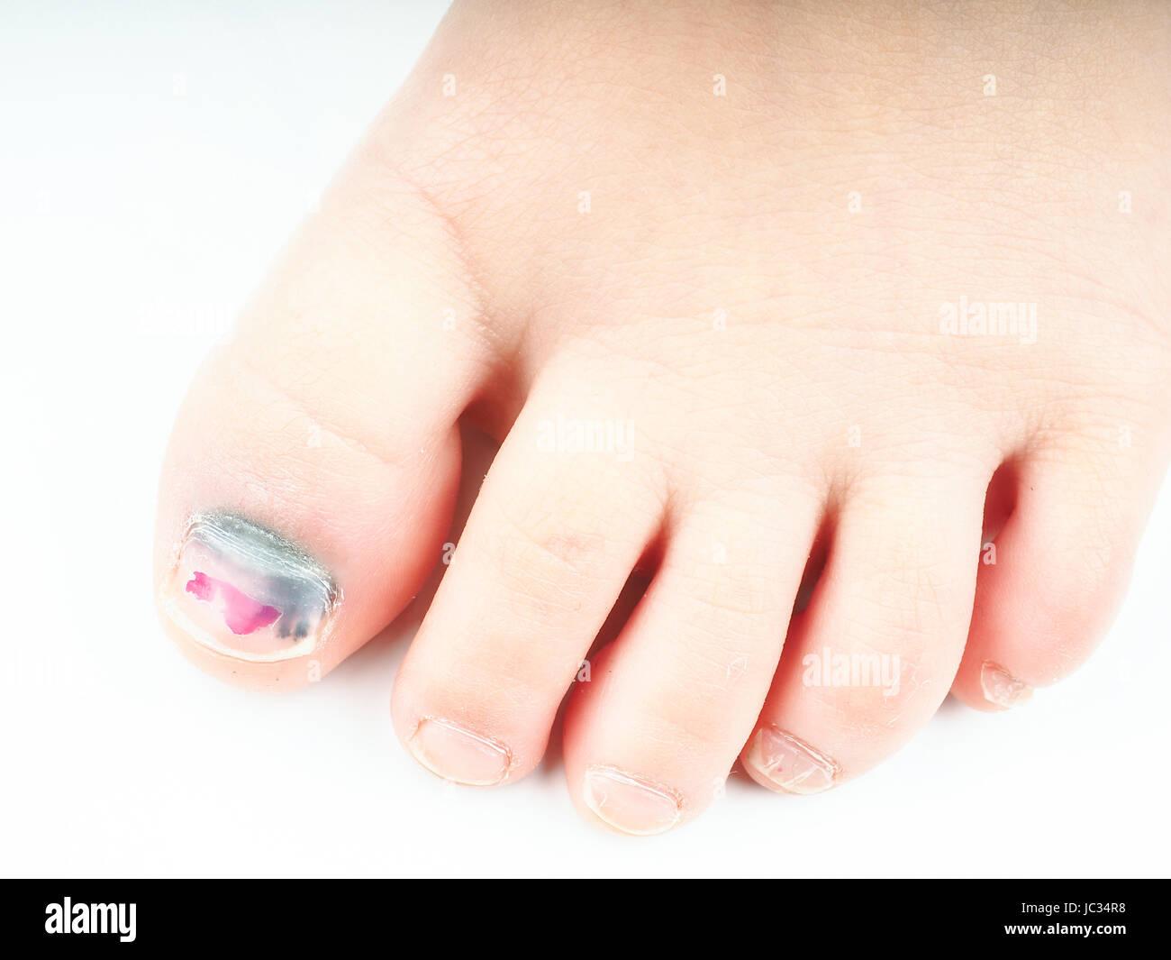 Nahaufnahme der ein kleines Mädchen-Fuß mit blauen Nagel an den ...
