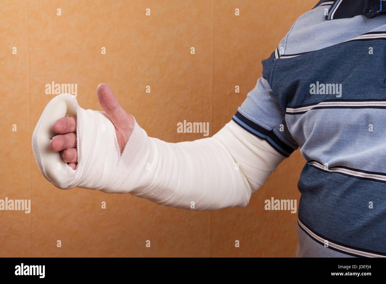 Gebrochen gips juckt arm Arm gebrochen