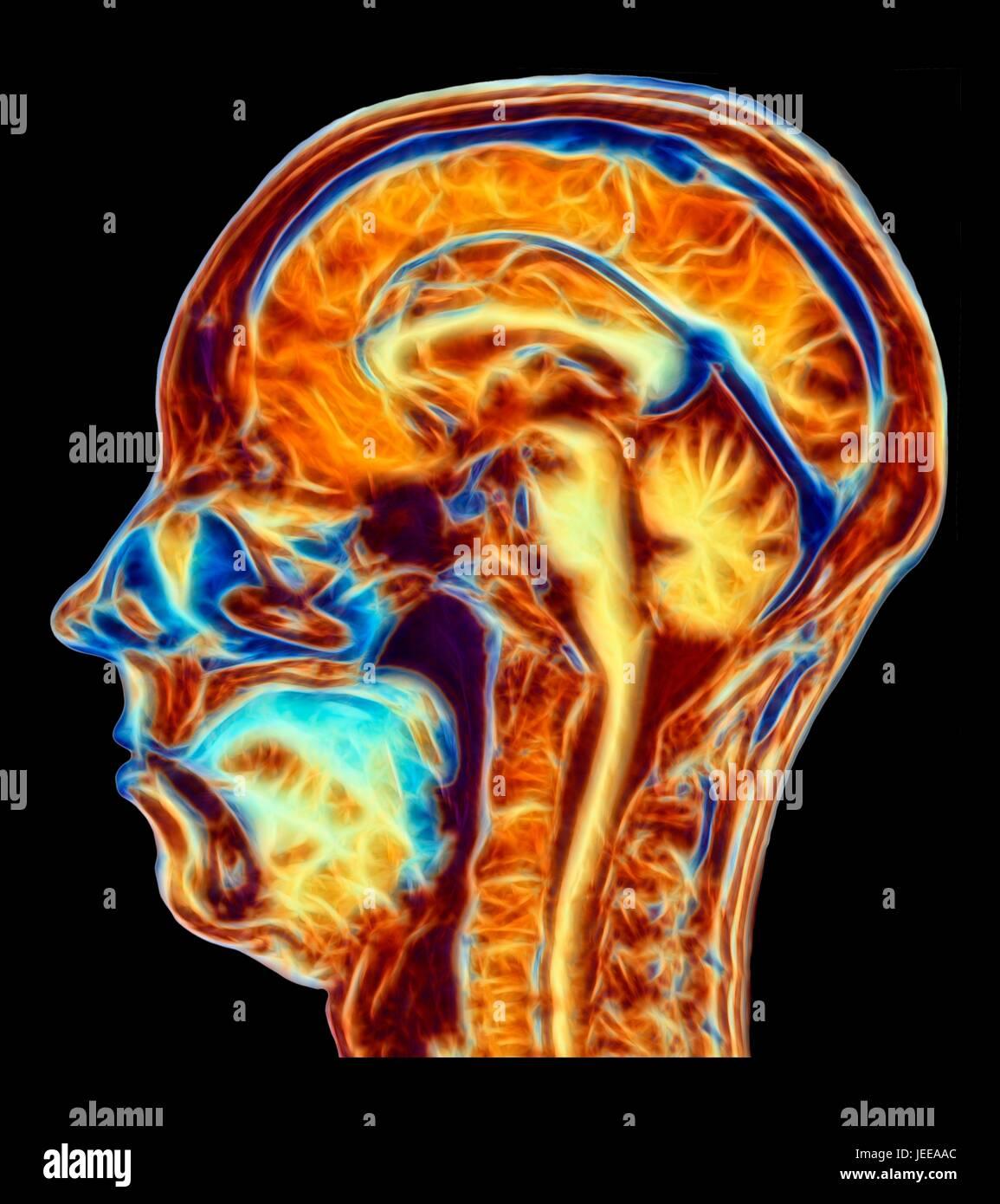 Groß Anatomie Des Gehirns Mri Zeitgenössisch - Menschliche Anatomie ...