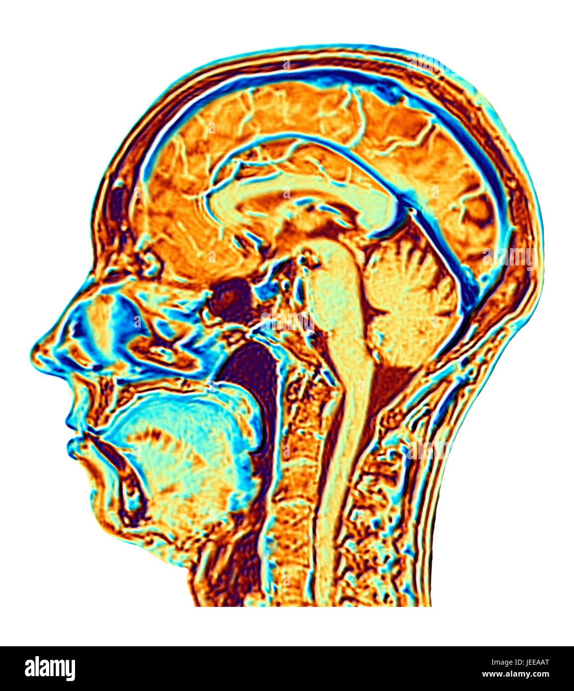 Nmr Brain Scan Stockfotos & Nmr Brain Scan Bilder - Alamy