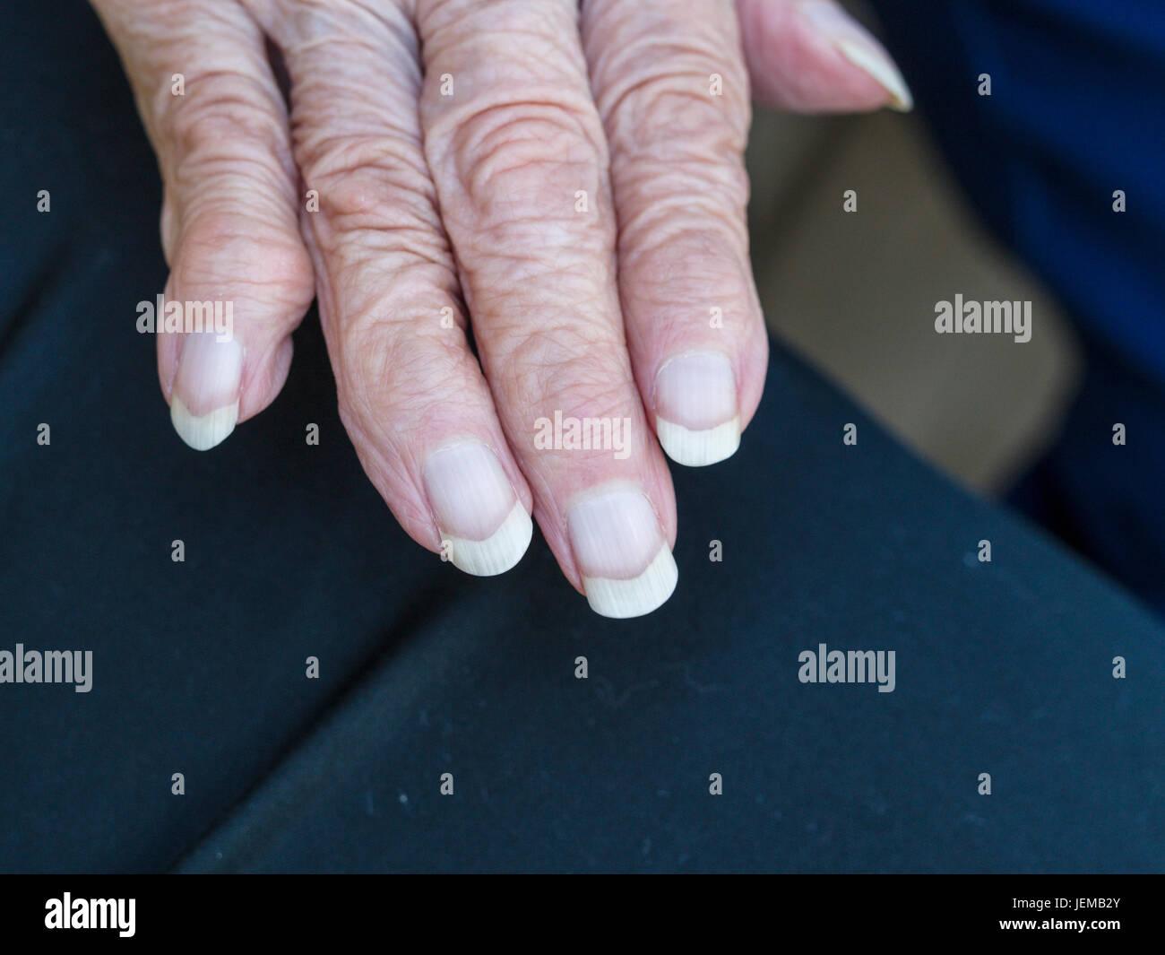 Arthritischen faltige Hand eine ältere Frau: die Rechte Hand mit langen Nägeln und deformierte Finger Stockbild