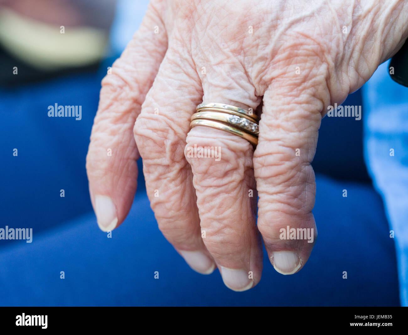 Arthritischen Faltige Hand Eine Altere Frau Die Linke Hand Mit Trau