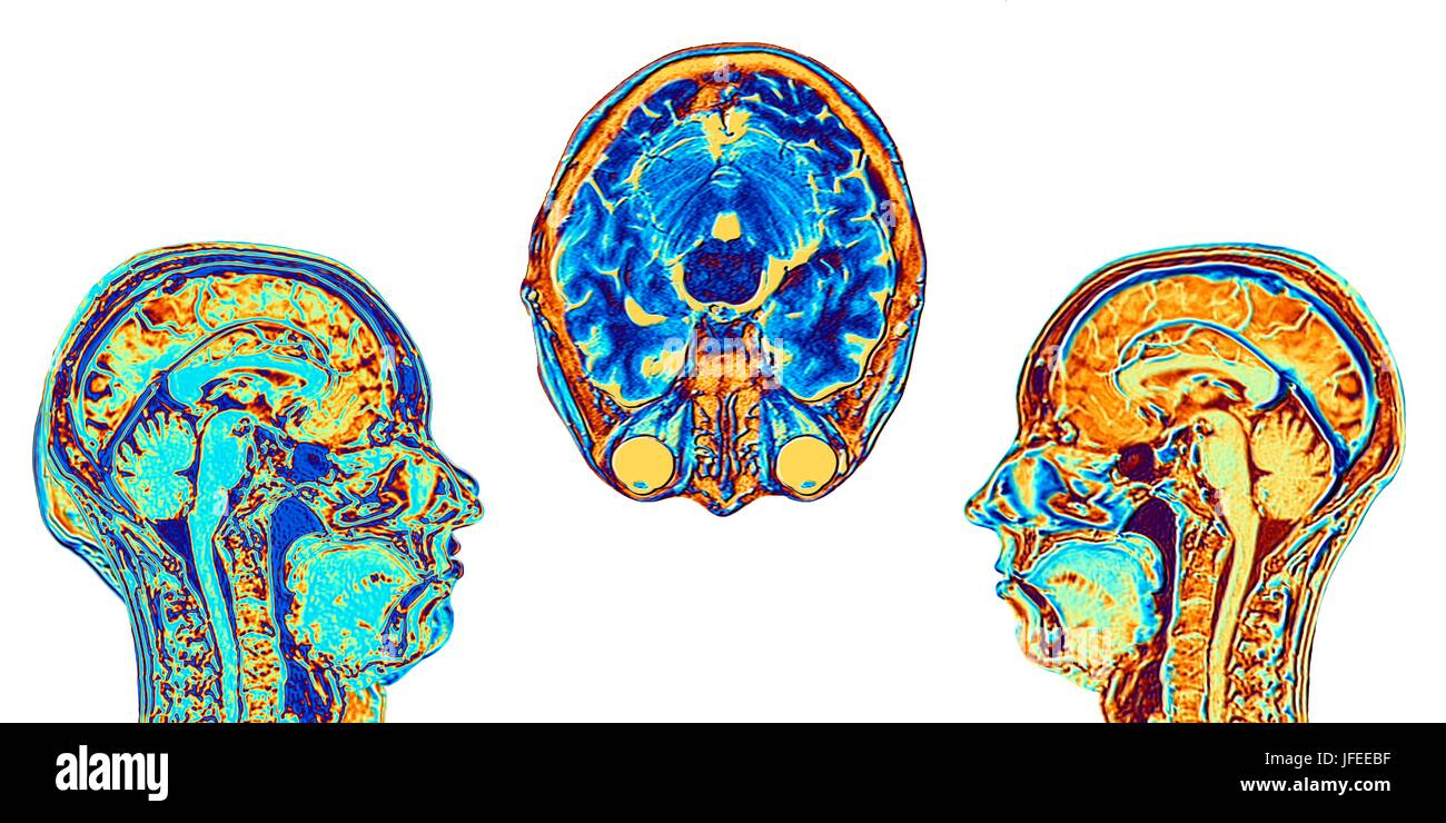 Computer verbessert falsche Farbe Magnetic Resonance Bilder (MRI ...