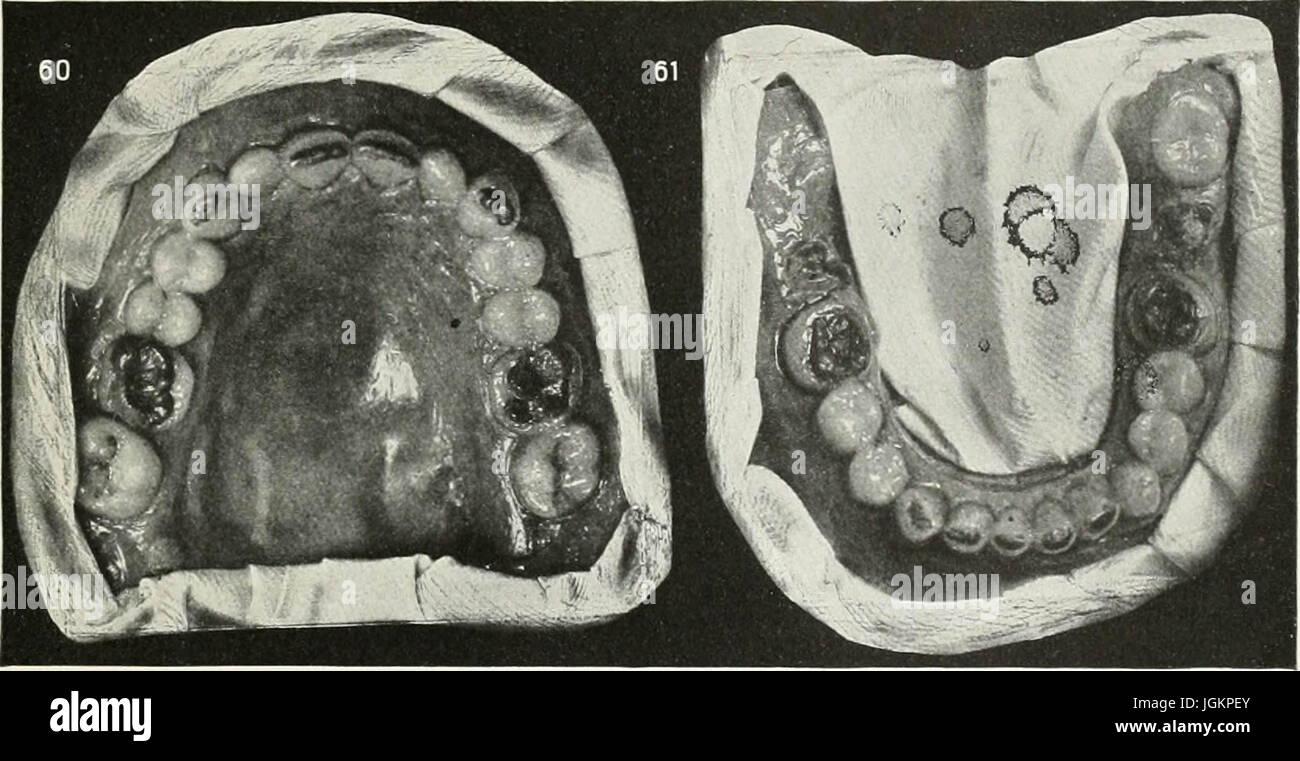 Wunderbar Teile Des Mundes Fotos - Menschliche Anatomie Bilder ...
