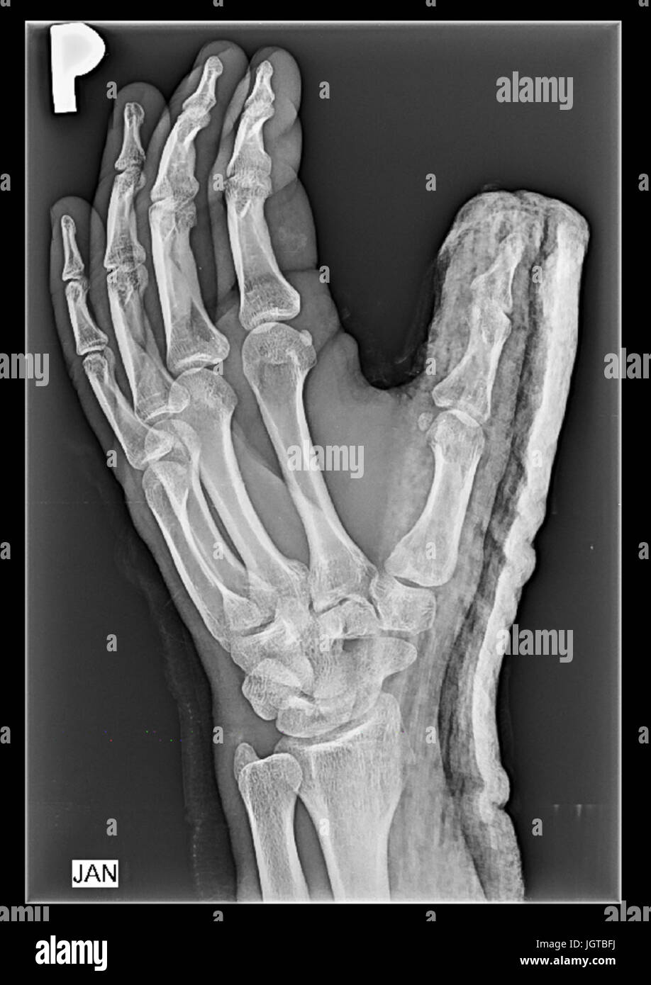 Finger Fracture Stockfotos & Finger Fracture Bilder - Alamy