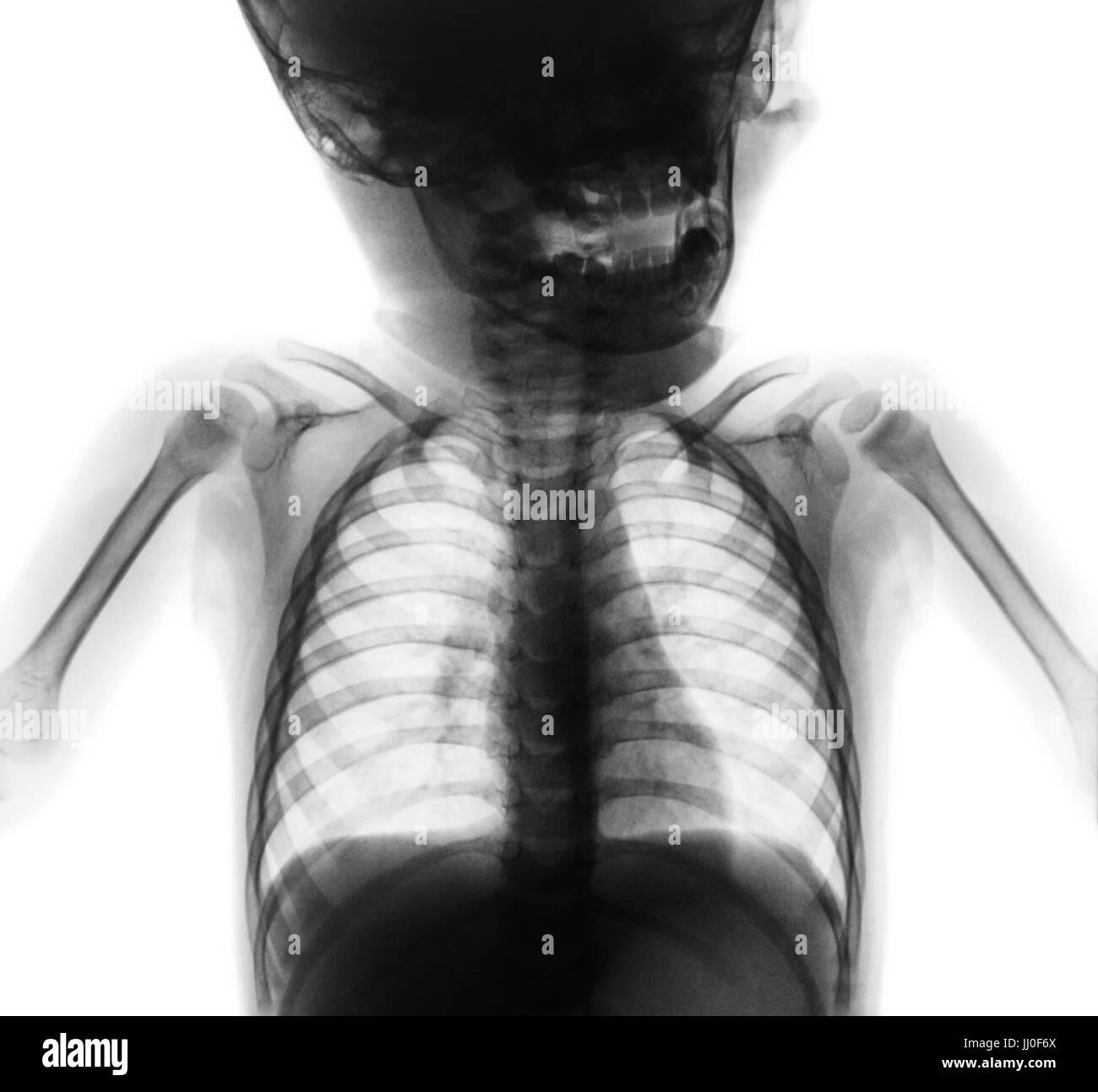Film x-ray normale Brust des Babys. Obere Hälfte des Körpers ...