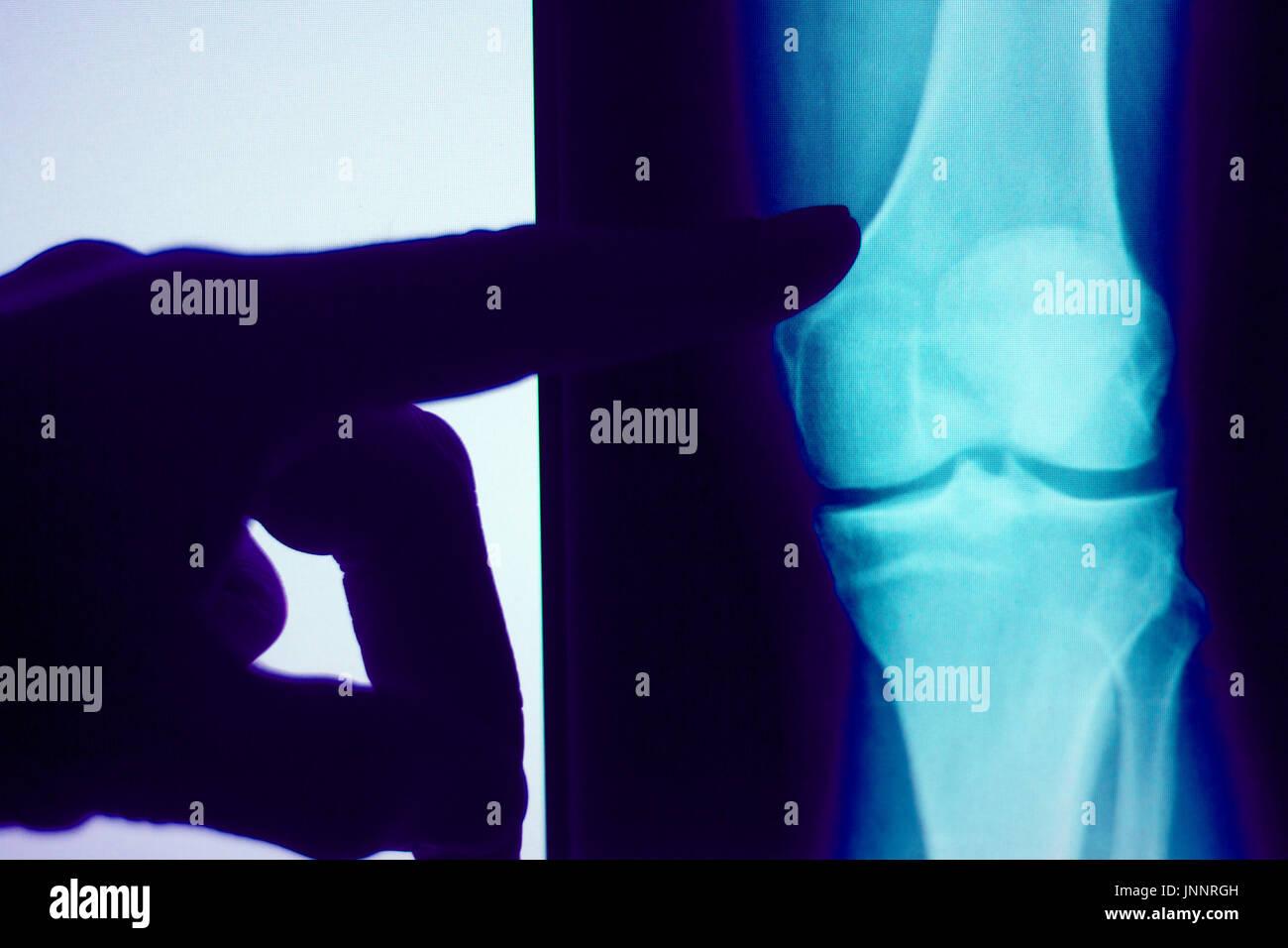 Knie gemeinsamen Xray Test Scan-Ergebnisse von Patienten mit ...