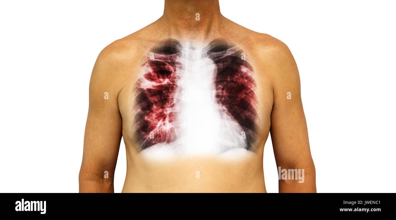Lungentuberkulose. Die menschliche Brust mit x-ray Hohlraum an der ...