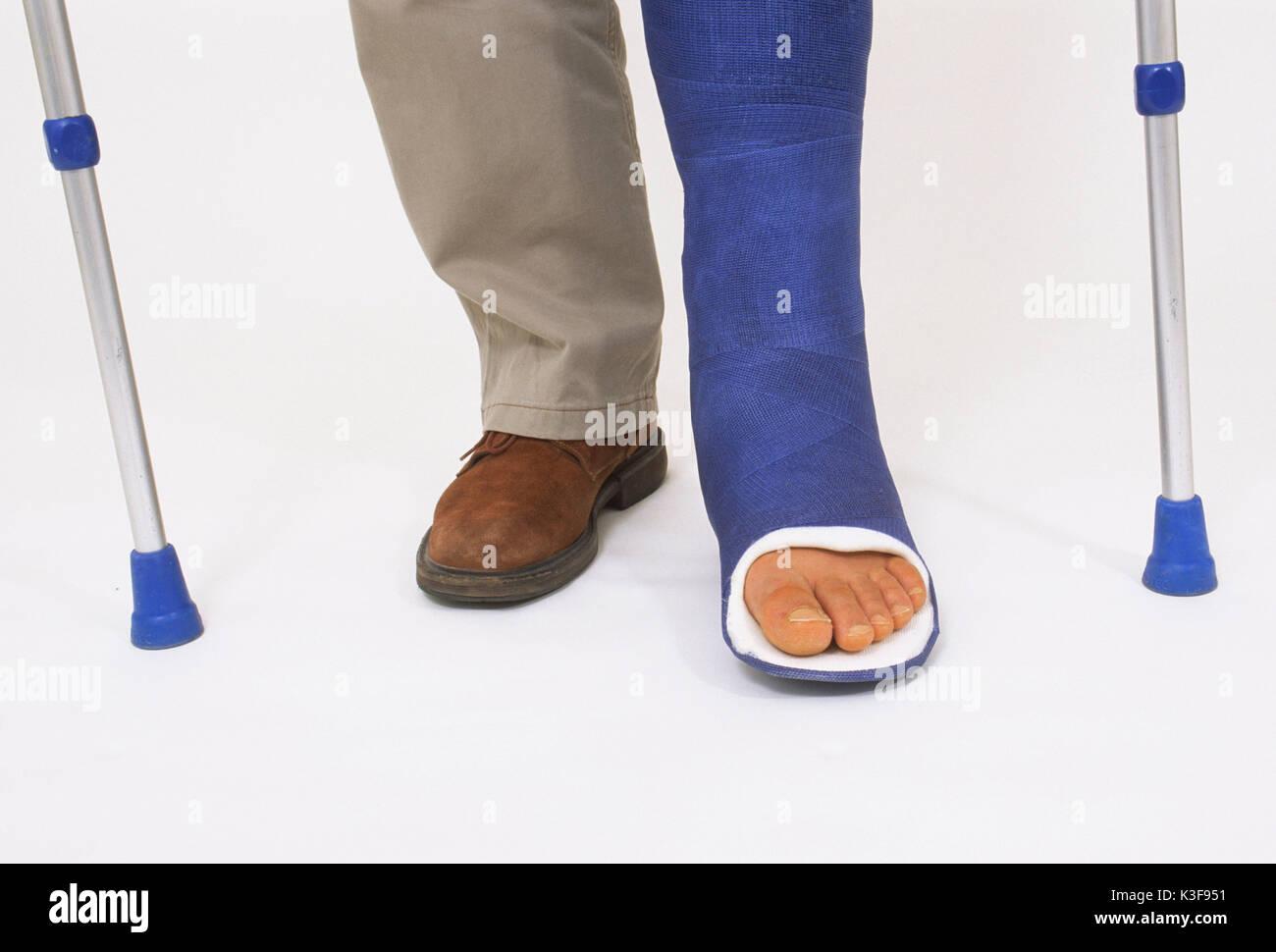 Mann geht mit Bein in Gips in Krücken Stockfoto, Bild