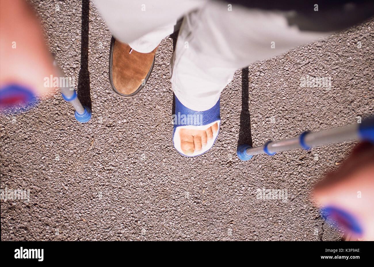 Gips Bein Stockfotos und -bilder Kaufen - Alamy