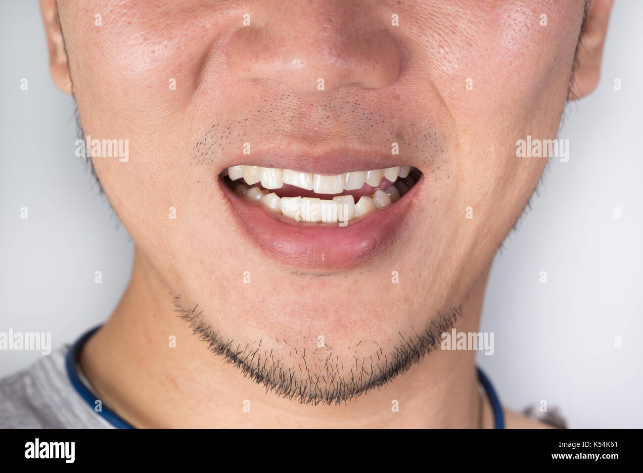 Zähne hässliche Diese hässlichen