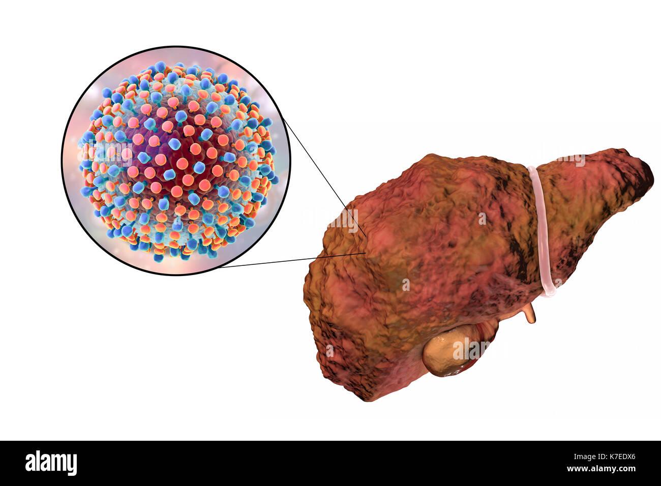 Computer zeigt Eine zirrhotische Leber und eine Nahaufnahme von ...