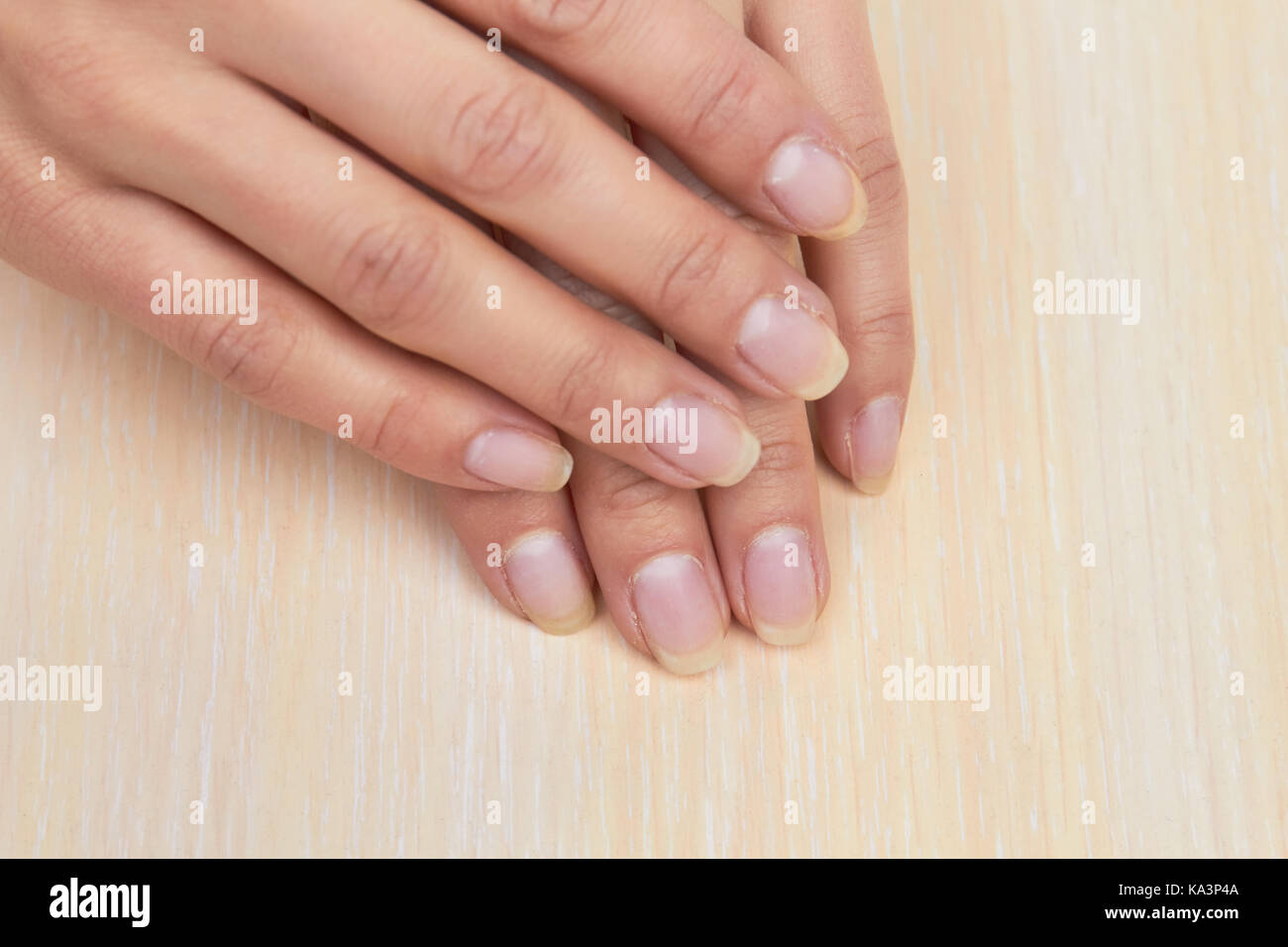 Girl Without Hands Stockfotos & Girl Without Hands Bilder - Alamy
