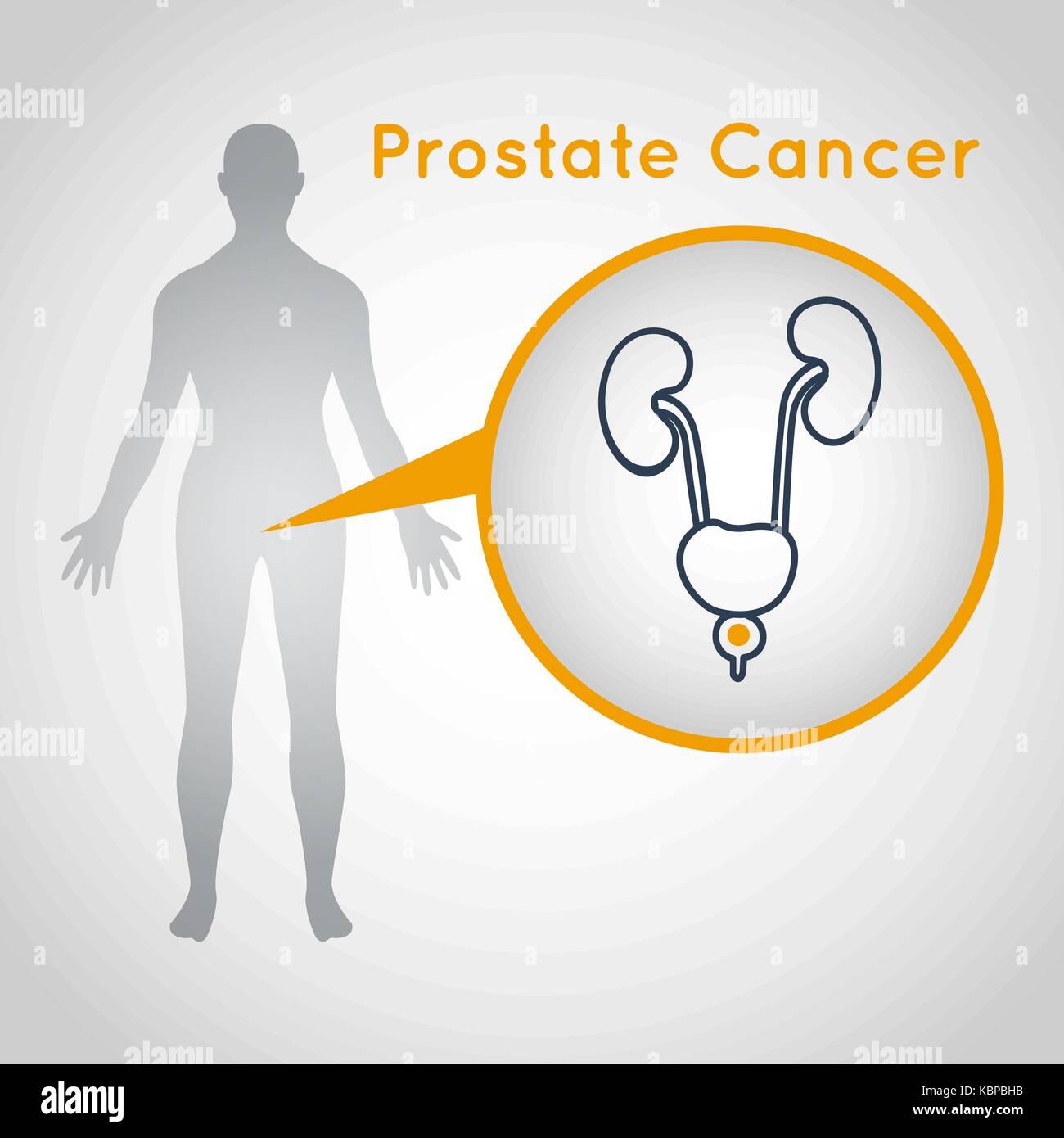 Prostate Gland Stockfotos & Prostate Gland Bilder - Alamy