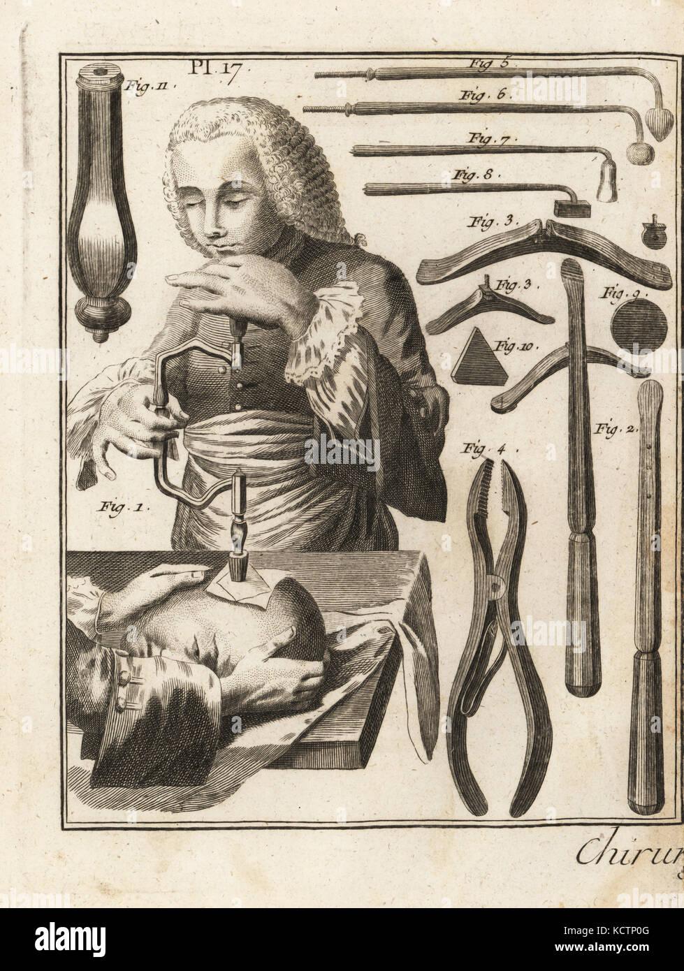 18. jahrhundert Chirurgen durchführen einer Kernbohren Betrieb auf dem Kopf, mit verschiedenen chirurgischen Stockbild