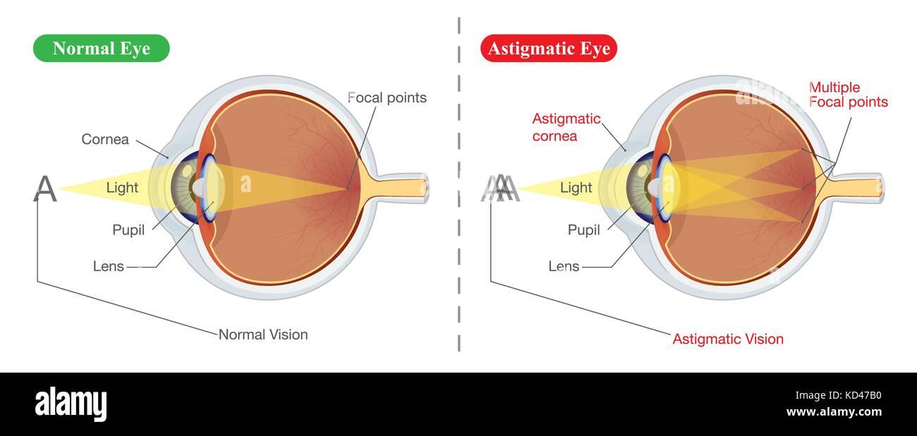 Gemütlich Auge Anatomie Bilder Zeitgenössisch - Menschliche Anatomie ...