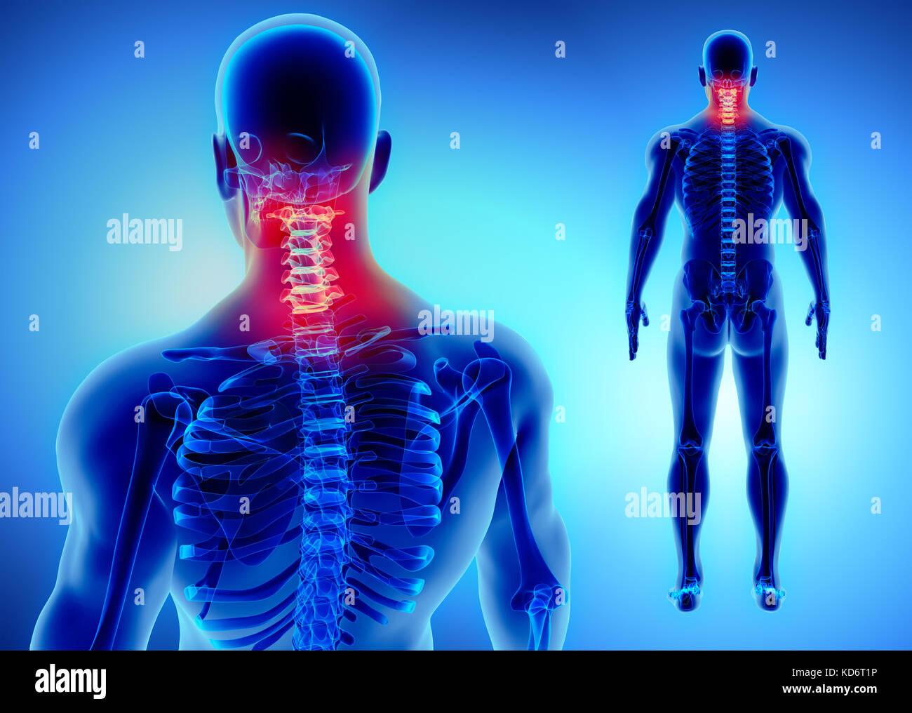 3d-Abbildung der Halswirbelsäule - Teil des menschlichen Skeletts ...