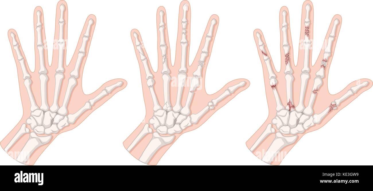 Ungewöhnlich Handknochen Diagramm Fotos - Menschliche Anatomie ...