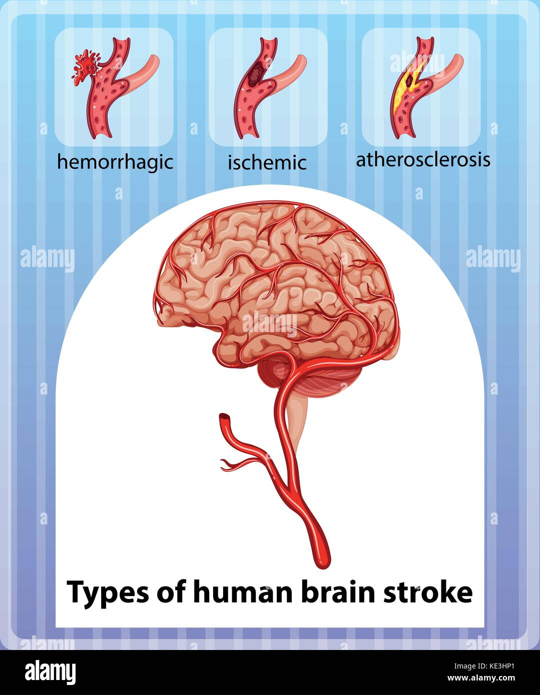 Arten des menschlichen Gehirns Schlaganfall Abbildung Vektor ...