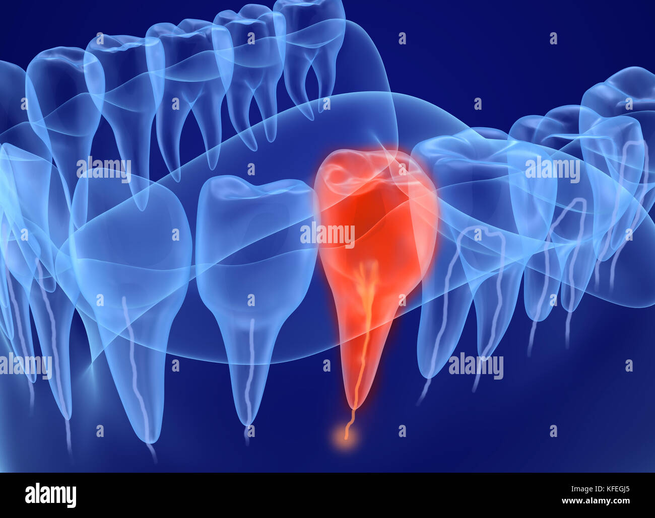 Dentin Stockfotos & Dentin Bilder - Alamy