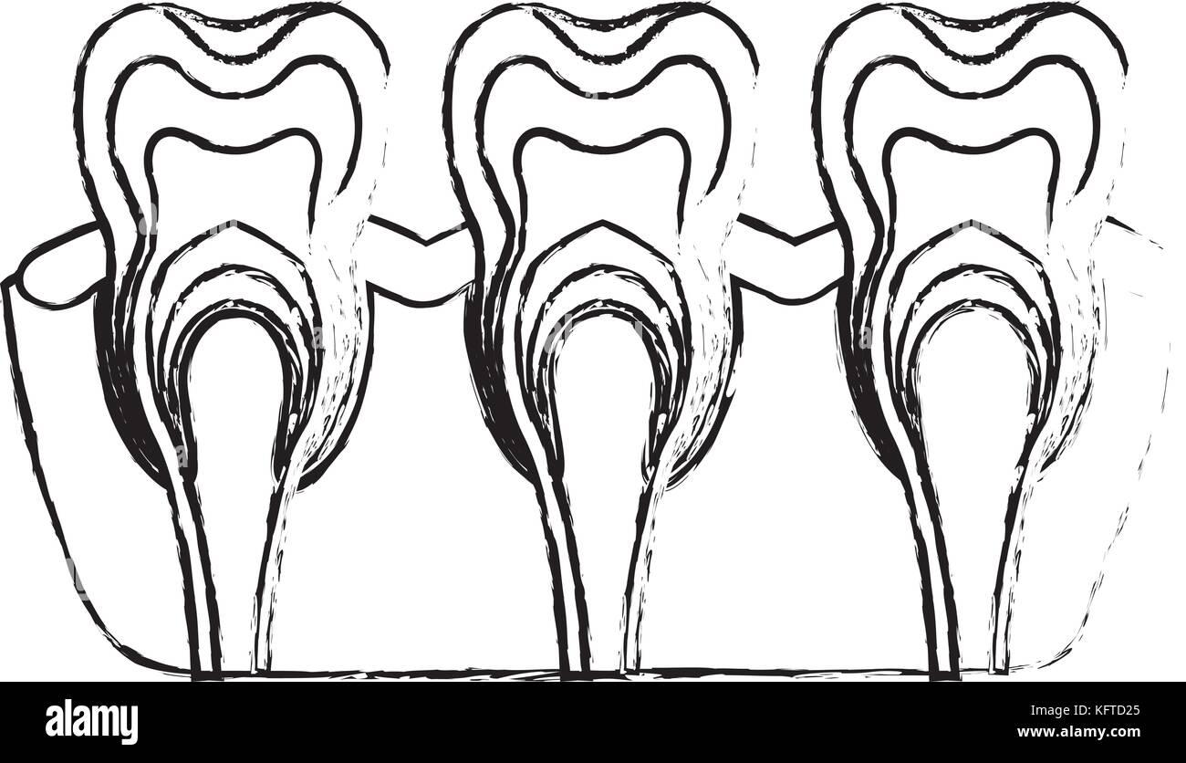 Zähne mit Nerven- und Zahnwurzel Blick in Schwarzweiß unscharfe ...