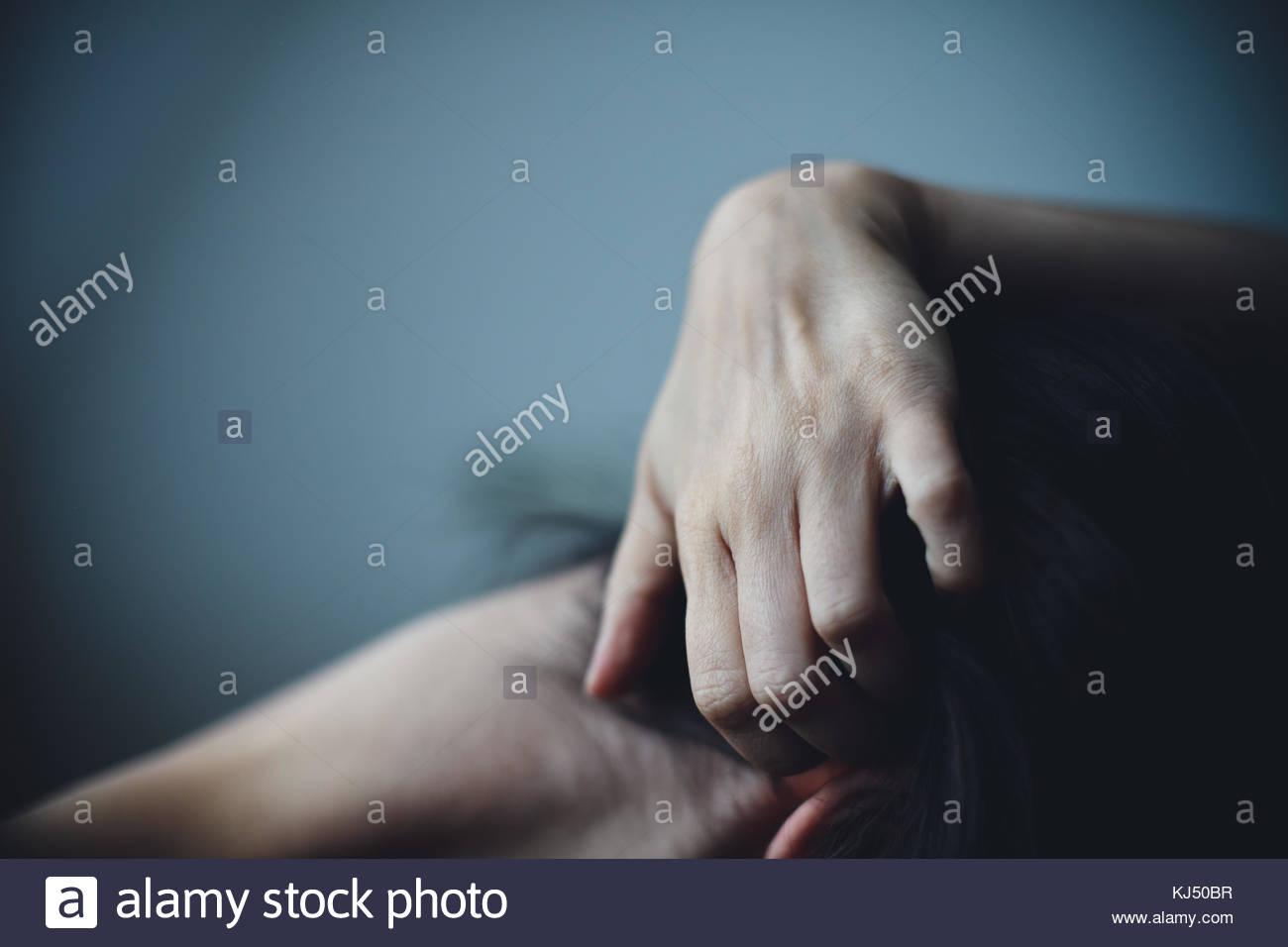 Hand Kratzen der Haut der Frau Stockbild