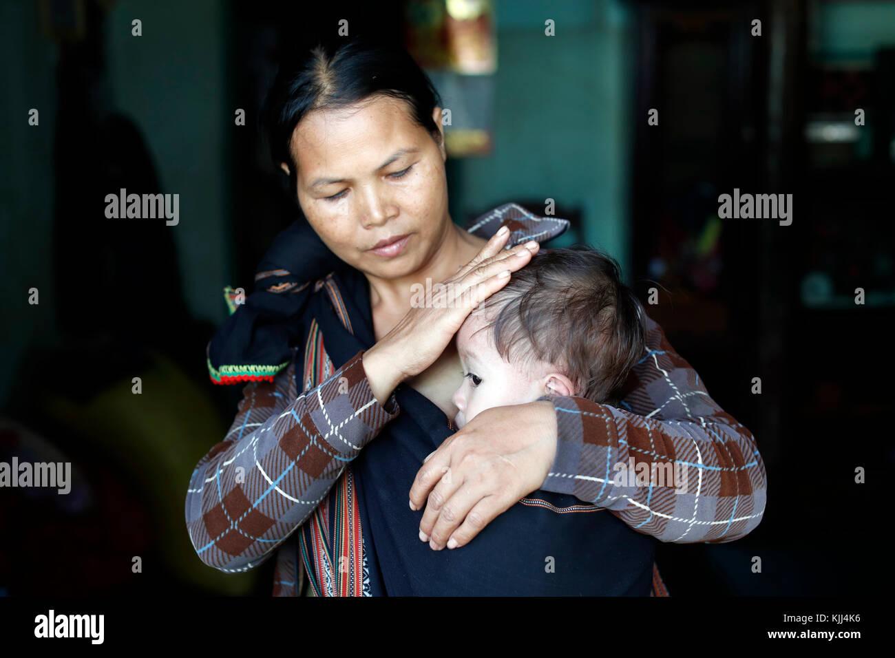 Mutter und ihre Jungen Leiden der Herzkrankheit. Kon Tum. Vietnam. Stockfoto