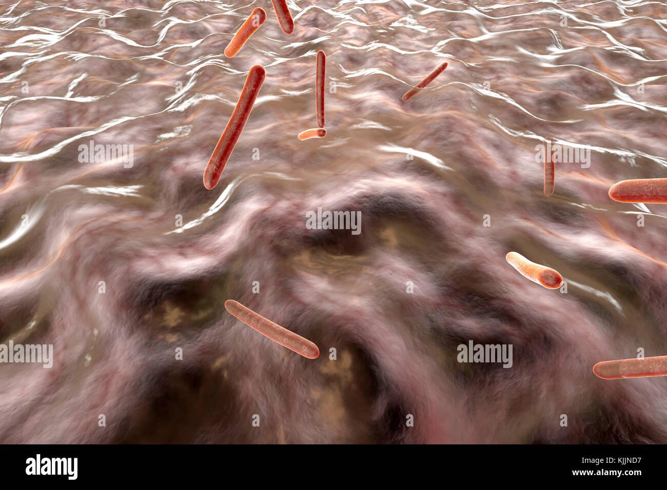 Gerenderten 3D-Illustration, Visualisierung von Tuberkulose Bakterien in einen Organismus Stockbild