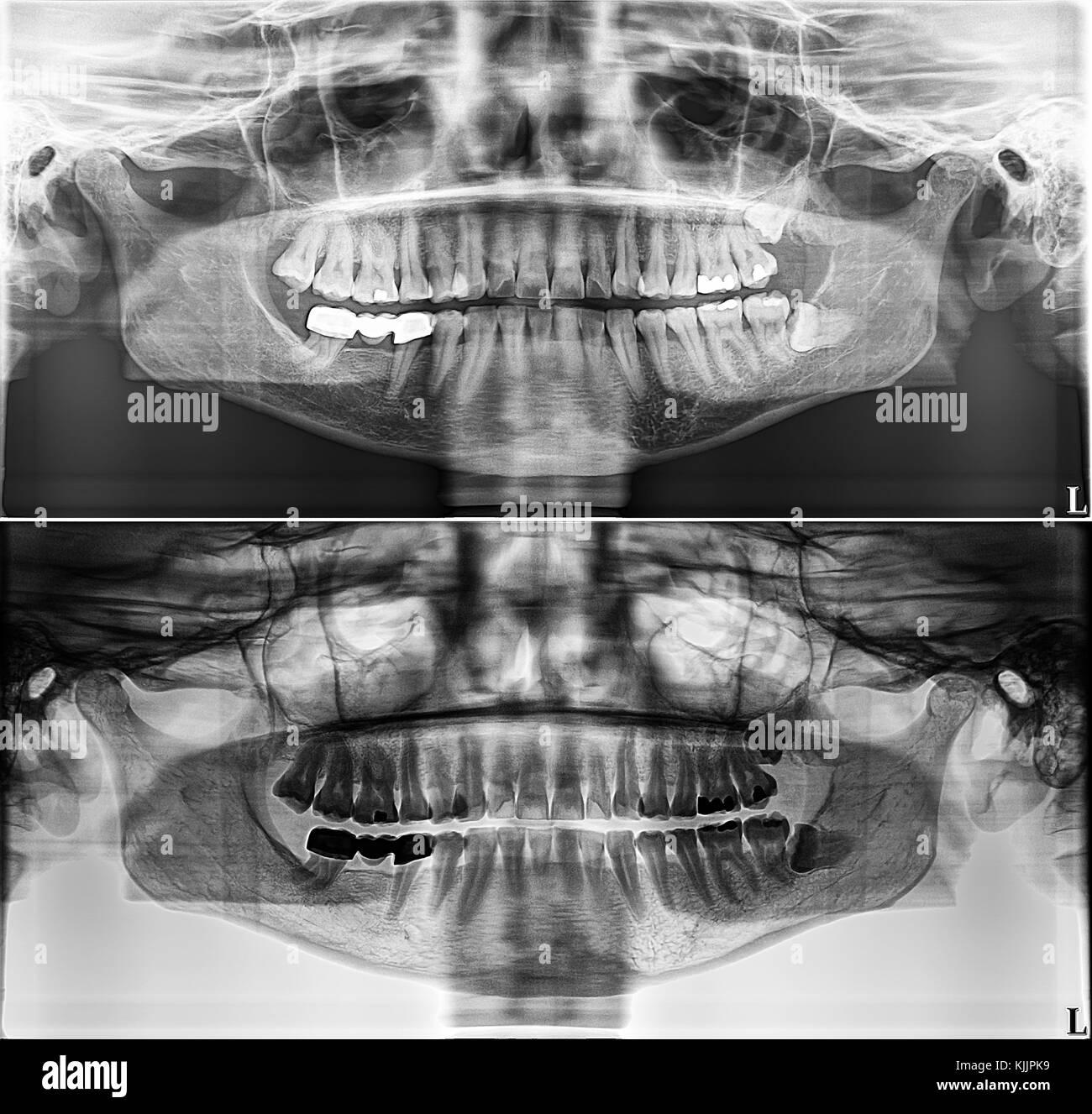 Panoramablick dental Xray, feste Zähne, Dental amalgam Dichtung, Weisheitszähne seitlich, horizontal belastet Stockbild