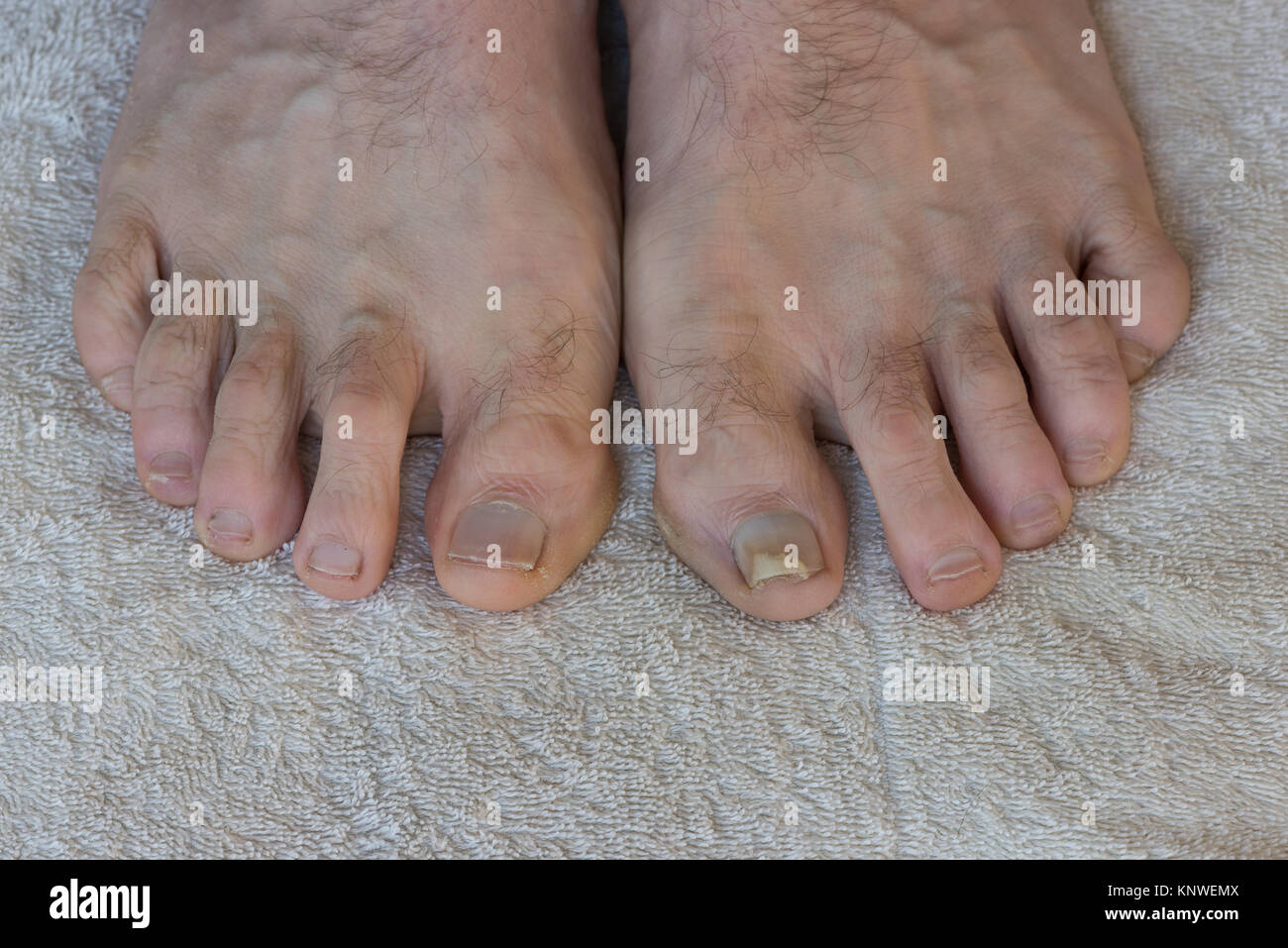 Trauma Verletzung durch dicht schließende Sport Schuhe die ...