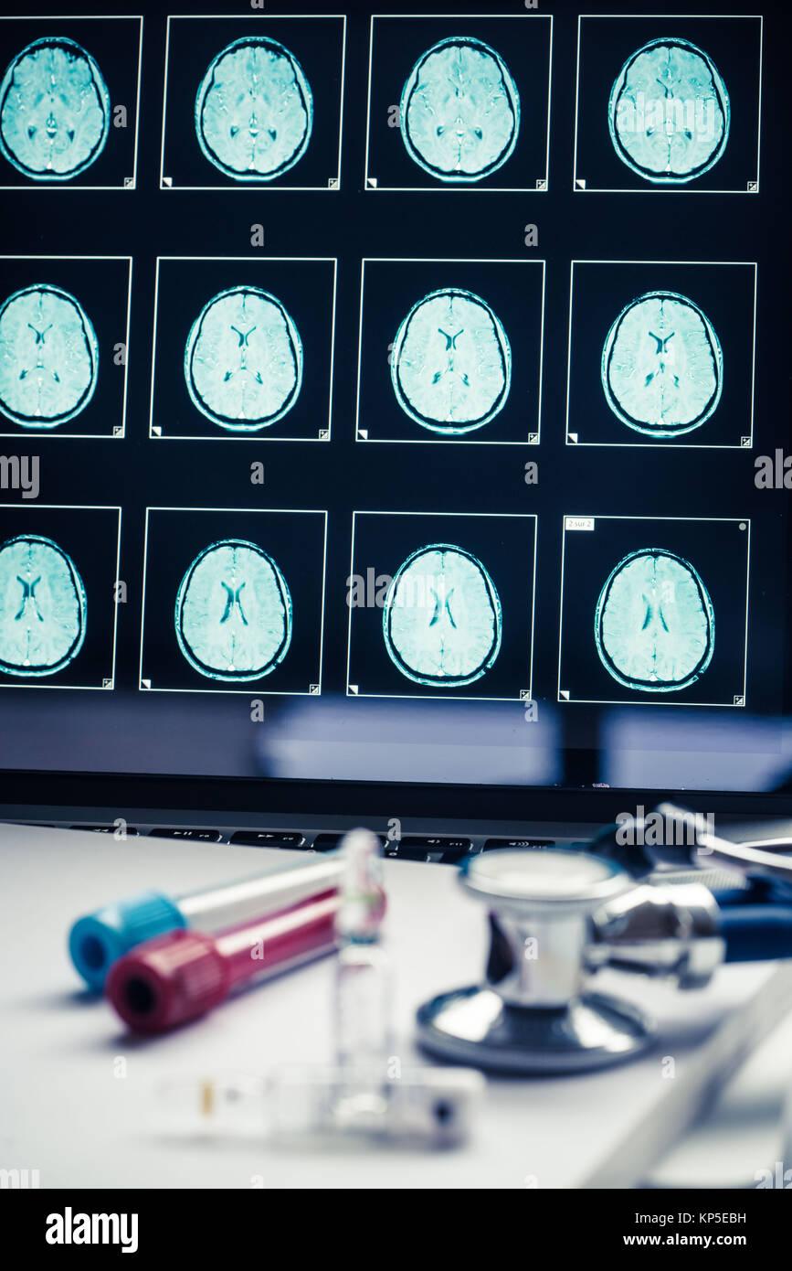 Computer zeigt eine Magnetresonanztomographie (MRT) eines menschlichen Kopfes mit einem gesunden Gehirn scannen. Stockbild