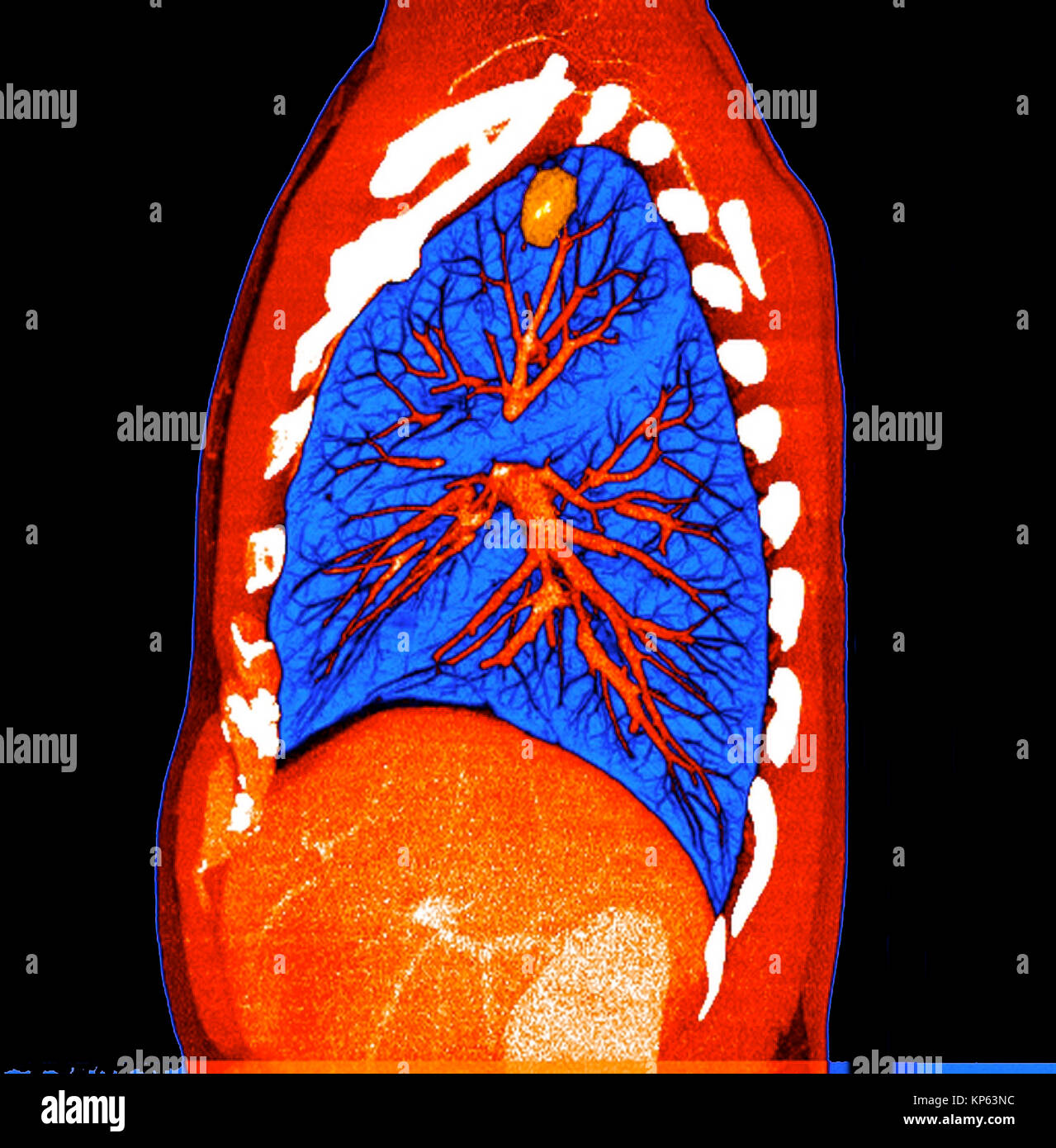Lung Cancer Ct Scan Stockfotos & Lung Cancer Ct Scan Bilder - Alamy