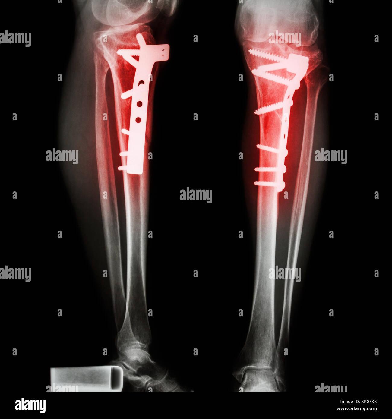 Tibia Fraktur Bein (Knochen). Es war bedient und interne fest ...