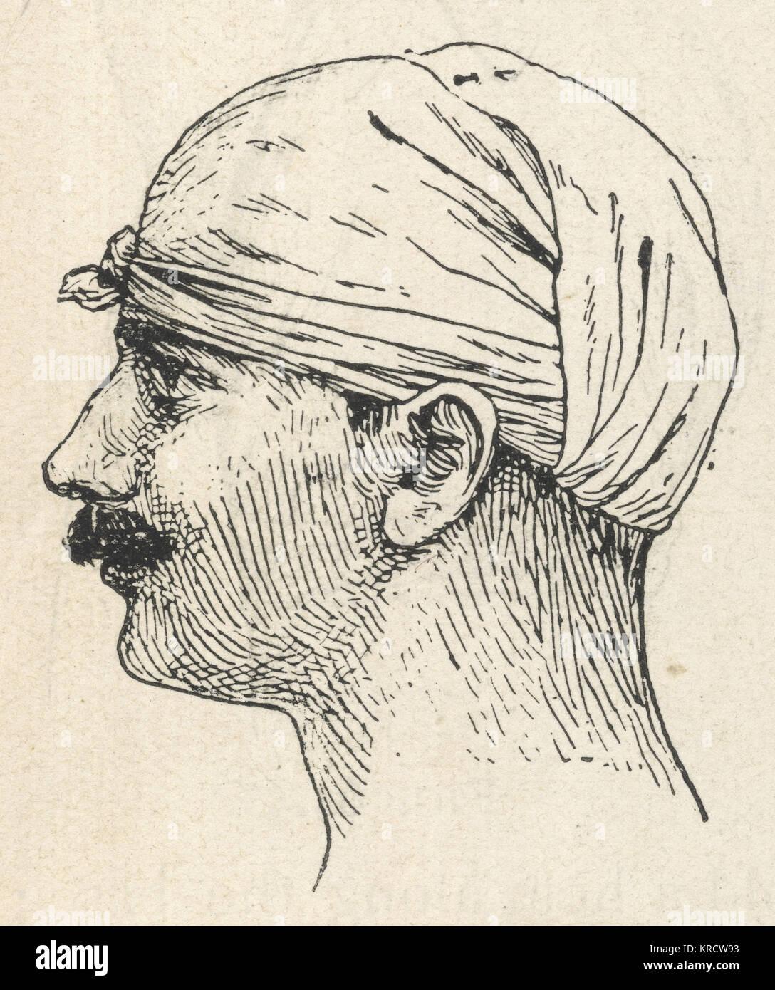 Erste Hilfe, dreieckige Esmarch die Bandage angewandt auf die Kopfhaut eine Wunde zu kleiden, Verbrennen oder Verbrühen. Stockbild