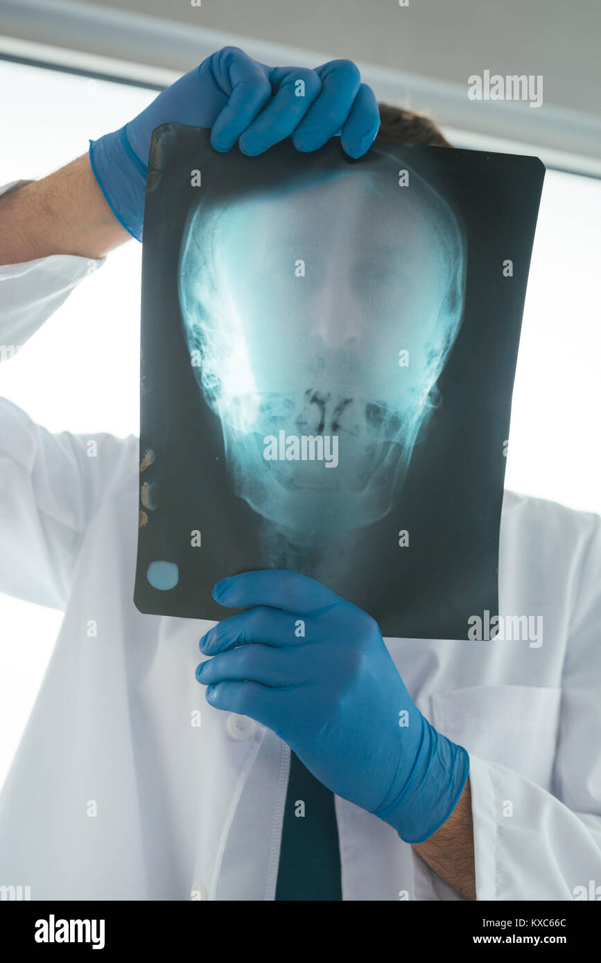Arzt Prüfung x-ray der Schädel des Patienten in eine Klinik ...