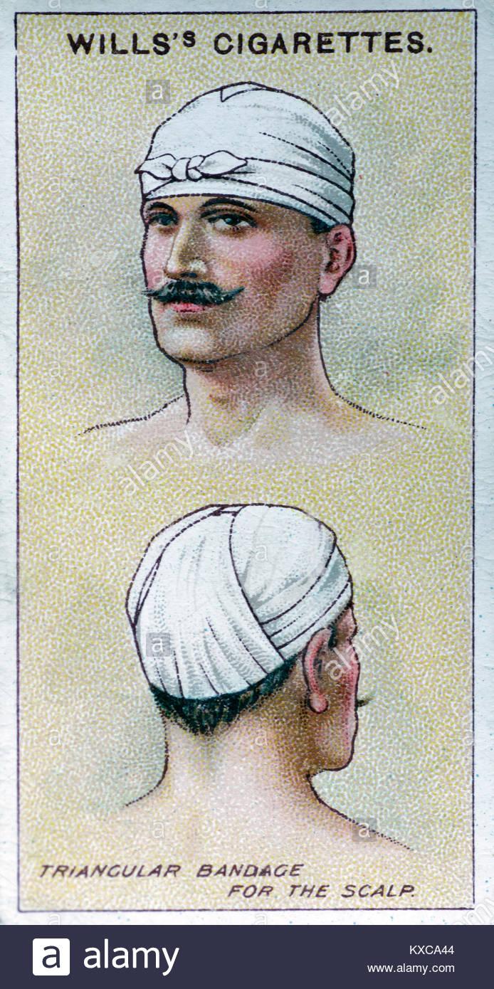 Jahrgang Erste-hilfe-Illustrationen - dreieckiger Verband für die Kopfhaut Stockbild