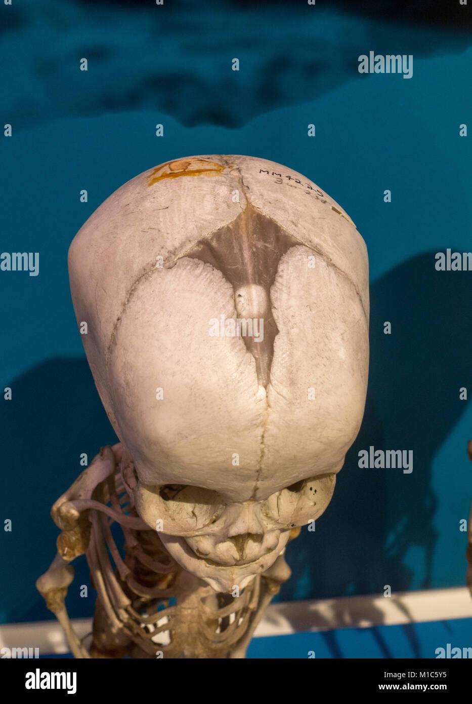 Infant Skull Stockfotos & Infant Skull Bilder - Alamy