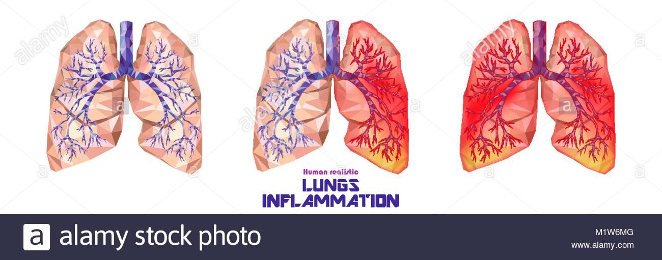 Die menschliche Lunge und Luftröhre in Poly niedrig eingestellt ...